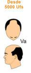 V a vertex