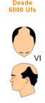 VI vertex