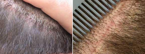 sutura tricofitica