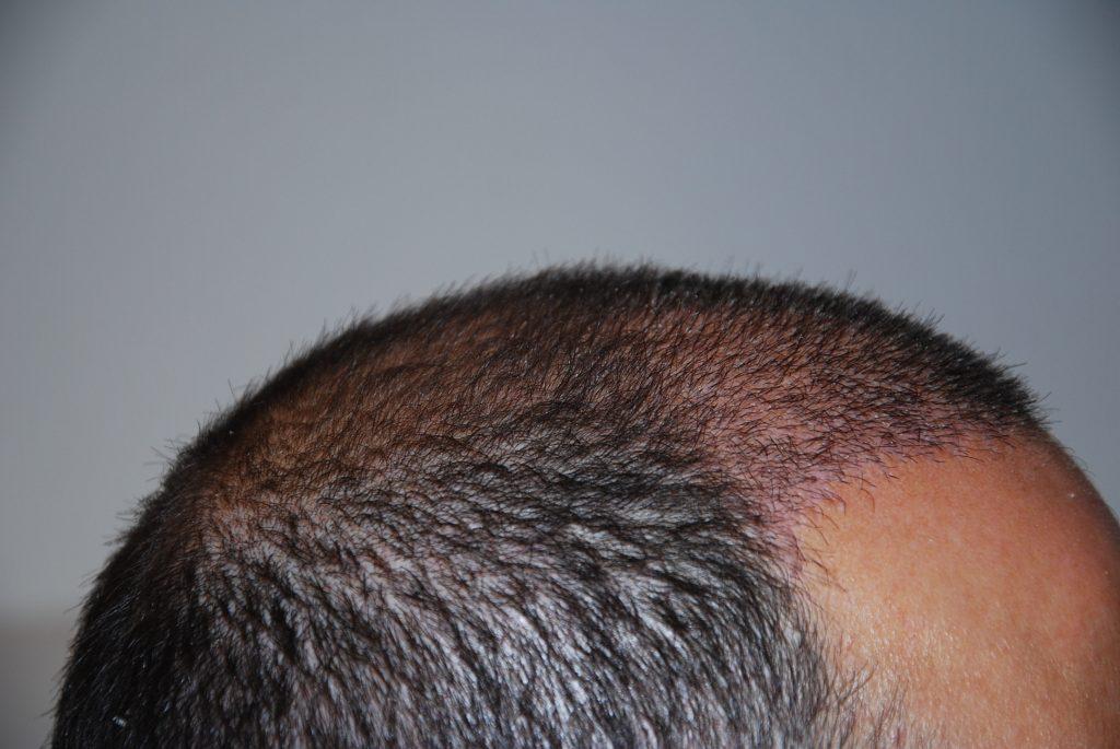Veintiún días de crecimiento del pelo.