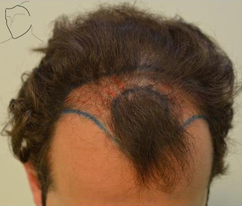 Mechón conservado de pelo en el frontal.