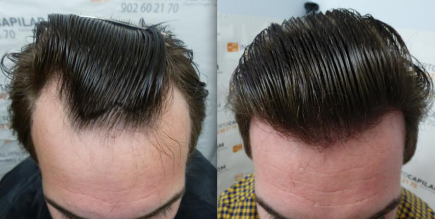 Alopecia en línea frontal