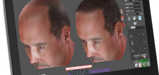 Sin y con pelo