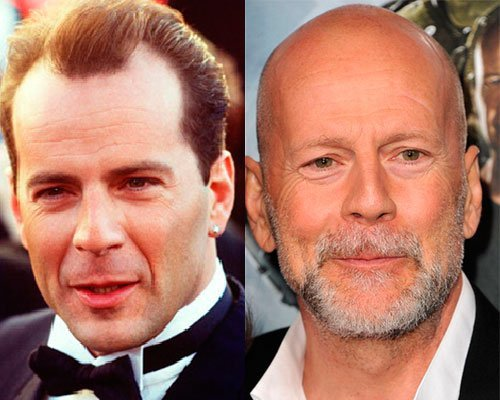 Bruce Willis Calvo