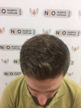 Lo mejor contra la alopecia para tus cabellos