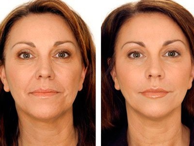 Carboxiterapia facial