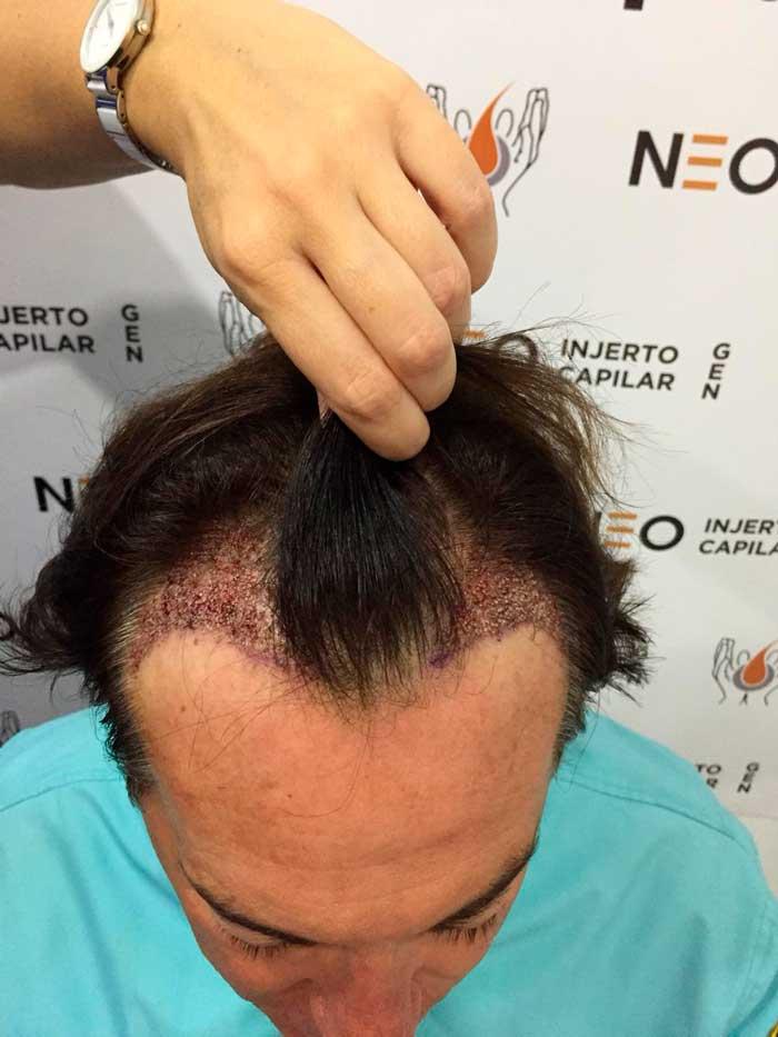Entradas de Pipi Estrada vistas desde arriba después del injerto capilar
